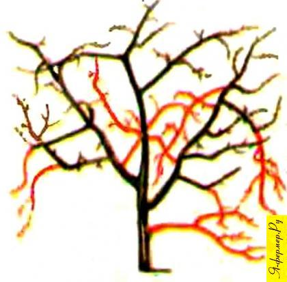 Схема обрезки вишни кустовидного типа