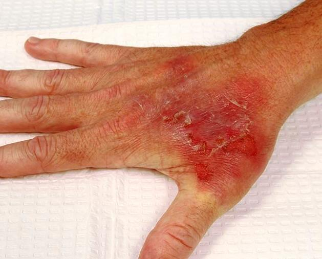 Контактный дерматит фото.